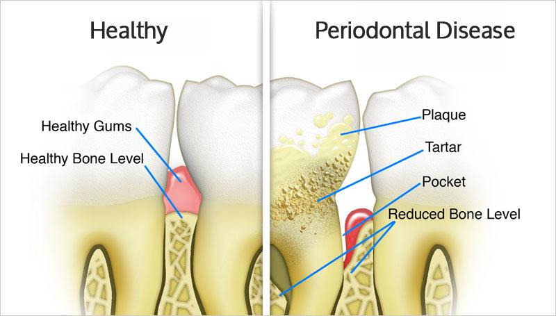 Kết quả hình ảnh cho periodontics